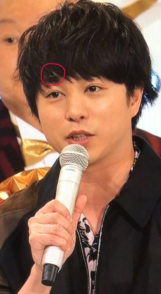【嵐】櫻井翔が紅白のリハで舞台から落ちて怪我!? 額の絆創膏、目の異変の謎が判明!