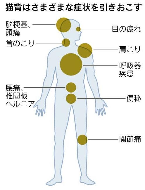 猫背が引き起こす症状