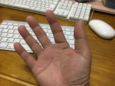 4時間がかりでキダイをさばき終わったら手の指先がパンパンに腫れてiPhoneが指紋認証しなくなりました