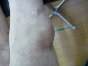 左足関節捻挫