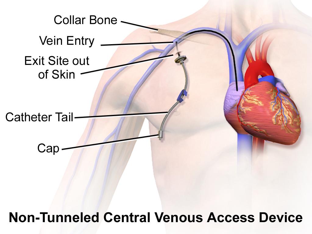 Blausen_0181_Catheter_CentralVenousAccessDevice_NonTunneled.png