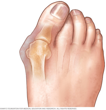 bunions-2-min.png