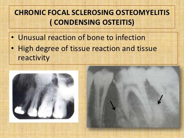 osteomyelitis-21-638.jpg