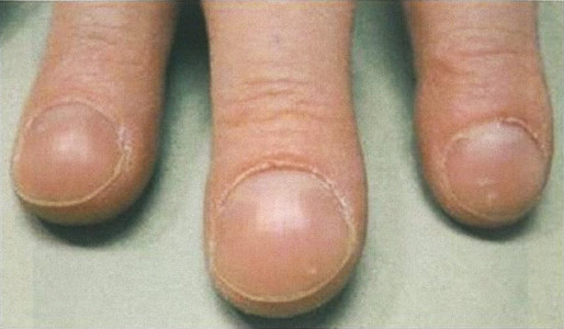 thumb_108I-46.jpg