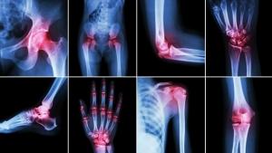 what-arthritis-pain-feels-like-722x406.jpg