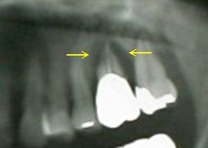 歯周病のX-ray