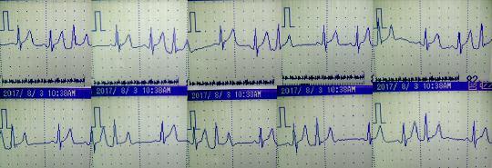 8月初めの心電図