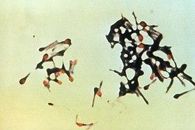 280px-Clostridium_tetani.jpg