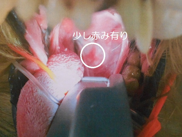 180121武蔵CT&内視鏡⑧