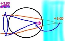 遠視 (2)