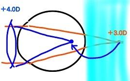 遠視 (3)