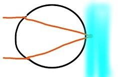 遠視2 (1)