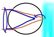 遠視3 (1)