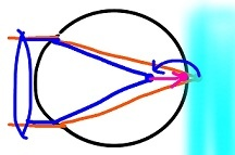 遠視3 (2)