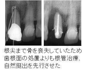初診時の右上前歯の状態