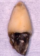 右上1の歯根面の状態