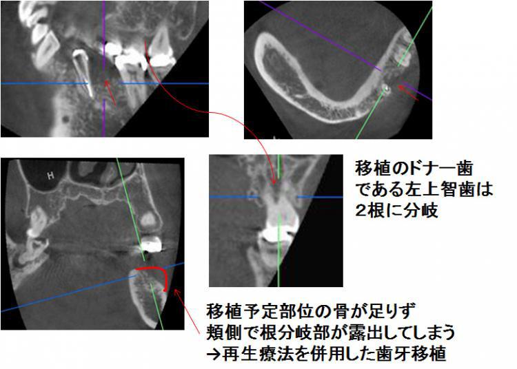 移植床部のCT画像