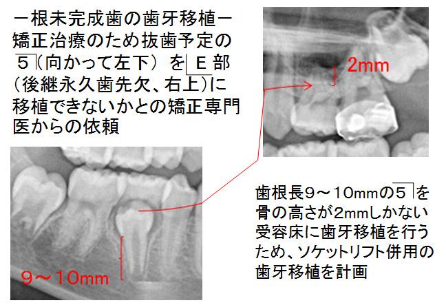 根未完成歯の歯牙移植