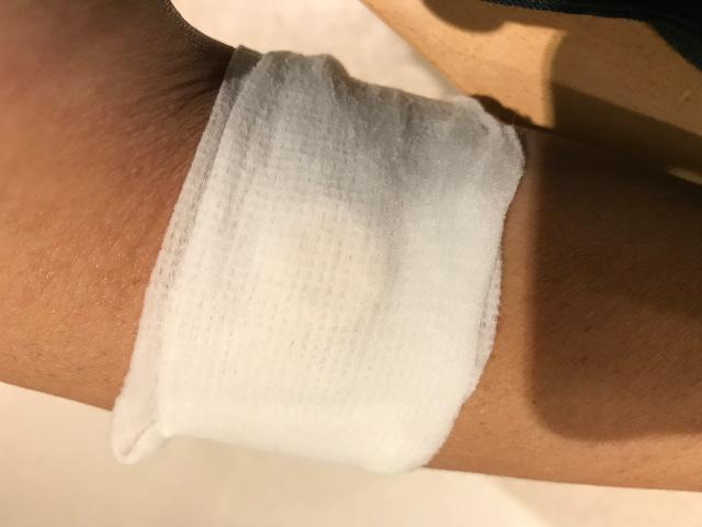 止血テープ