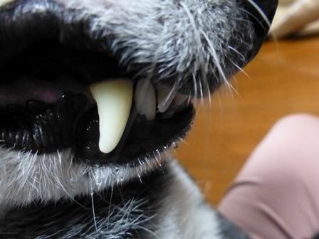 2018歯石除去14