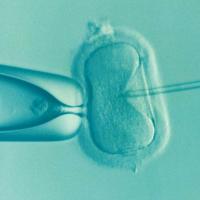 IVF人工授精pixabay