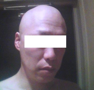 抗がん剤の副作用、脱毛の起こりかた、エイジングケア - 今日のエッセイ